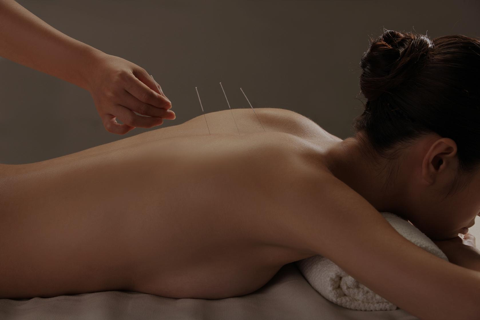 Conditions Treated with Acupuncture